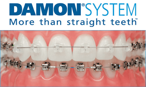 Damon Braces Beyond 32 Dental